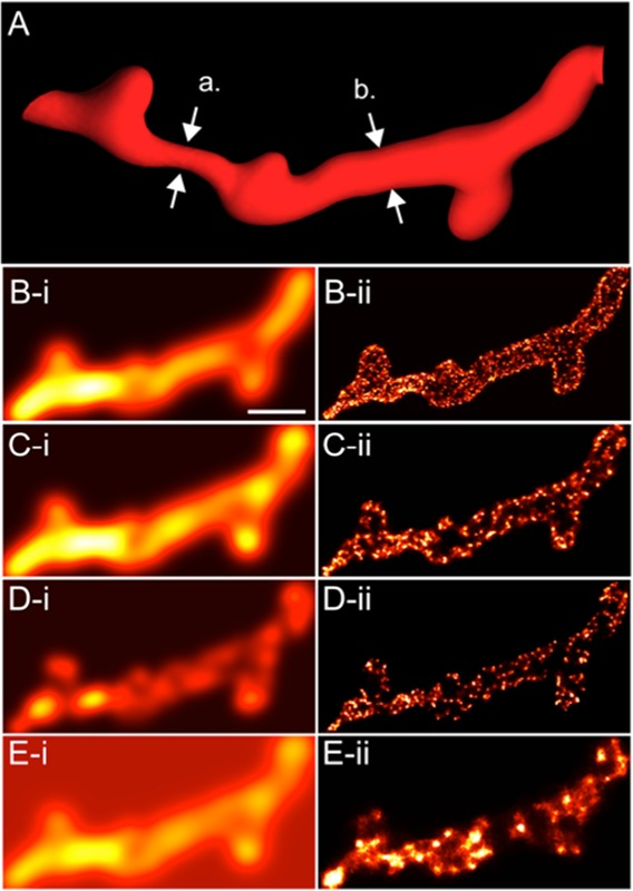 Revealing T-Tubules in Striated Muscle with New Optical Super-Resolution Microscopy Techniquess.